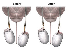 img-vasectomy-before-after_000