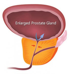 Benign Prostatic Hyperplasia–Enlarged Prostate