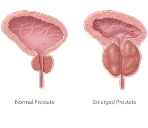 enlargedprostate2