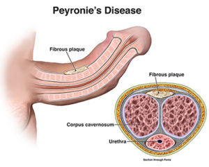peyronies